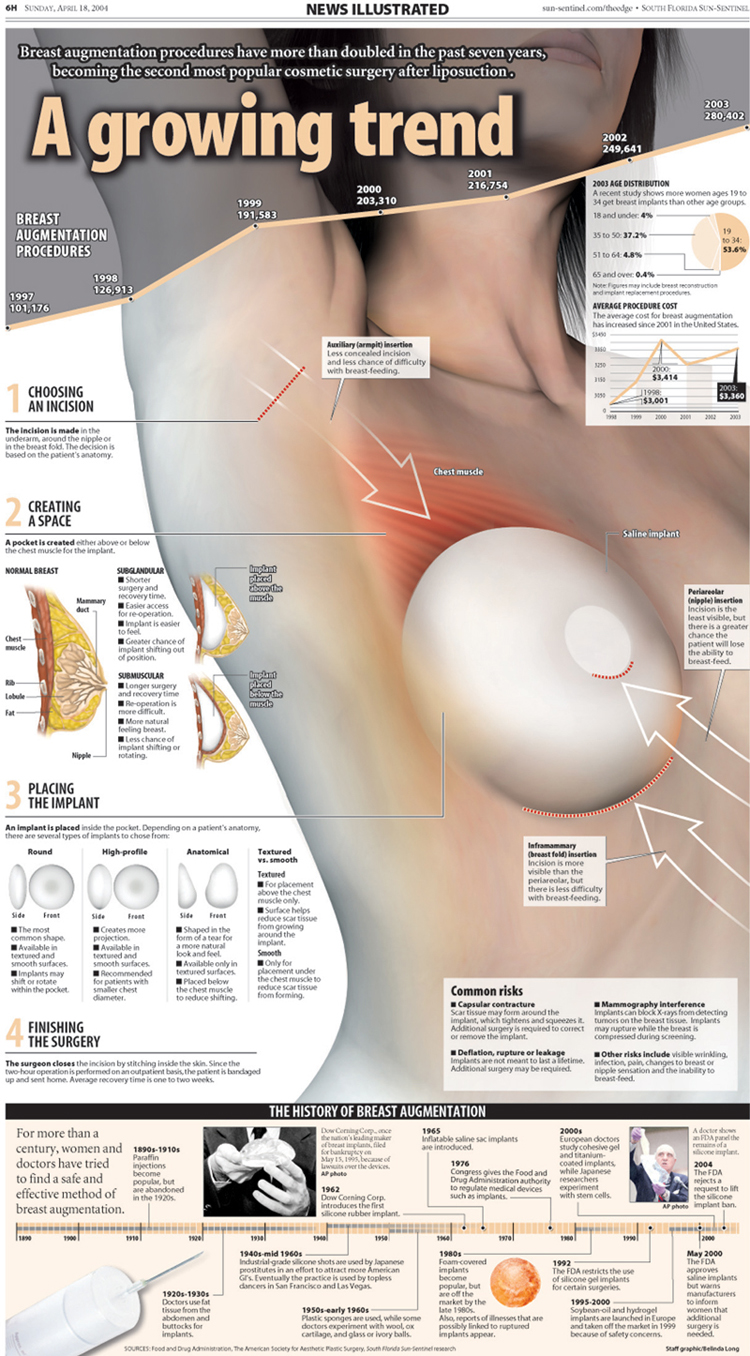 Breast Implants NI infographic